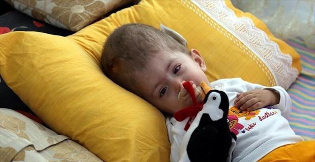 Hidrosefali hastası Ümmügülsüm ameliyat için yardım bekliyor